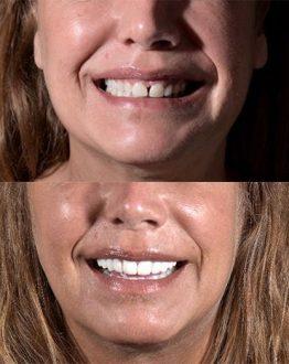 Resultados de diseño de sonrisas con carillas dentales