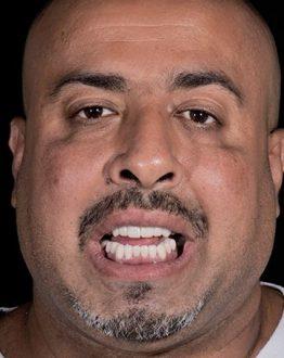Despues de implantes dentales en smile makeover playa del carmen