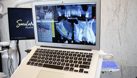 implantes dentales en smile makeover playa del carmen