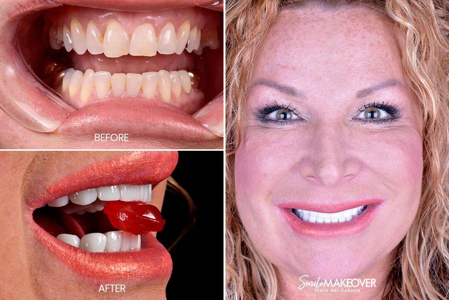 pacientes con diseño de sonrisa