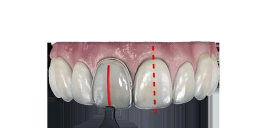 carillas dentales compuestas o resinas dentales