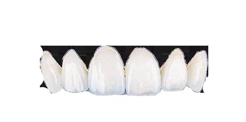 carillas dentales de porcelana
